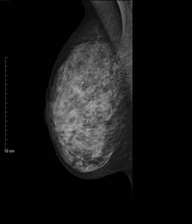 dreifach negative Brustkrebs - Englisch-bersetzung